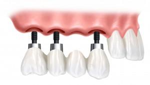 un-ponte-dentale-su-impianti-300x171